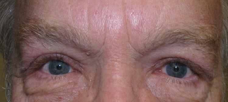 post-ptosis-brow-5-w-9736462