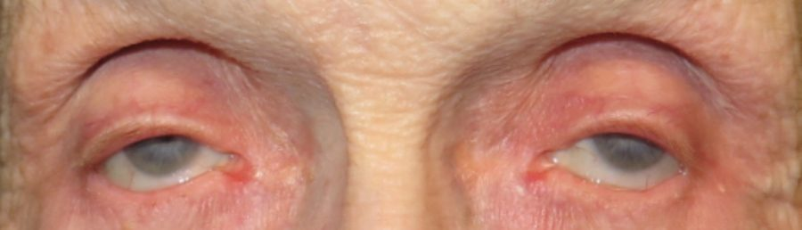 preop-ptosis-canthus-2018-5669517