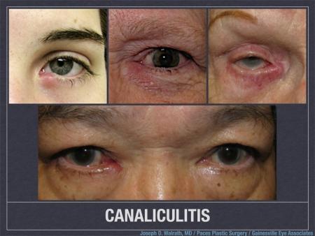 canaliculitis-jpg-nggid03117-ngg0dyn-450x0x100-00f0w010c010r110f110r010t010